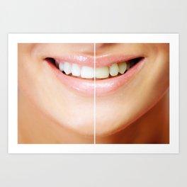 Tooth bleaching Art Print