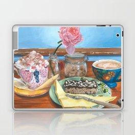 ''Catching Up'' Laptop & iPad Skin