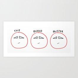 Blood Blister Art Print