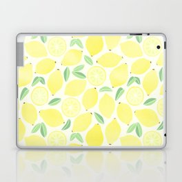 Summer Lemons Laptop & iPad Skin
