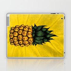 Pinipple Laptop & iPad Skin