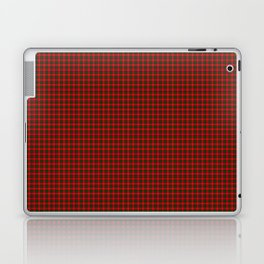 Chisholm Tartan Laptop & iPad Skin