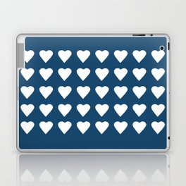 64 Hearts Navy Laptop & iPad Skin