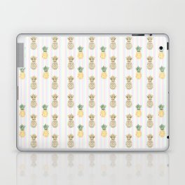 Be like a Pineapple Typography Laptop & iPad Skin