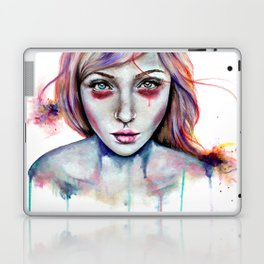 Seeing You Heterochromia Laptop & iPad Skin