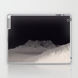 ...Dents Laptop & iPad Skin