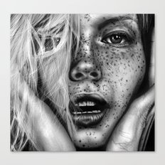 + FRECKLES + Canvas Print