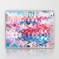 Tie Dye Soda Laptop & iPad Skin