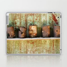 Tin Laptop & iPad Skin