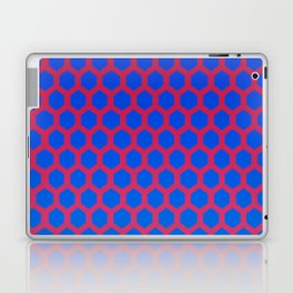 Shante You Stay Laptop & iPad Skin