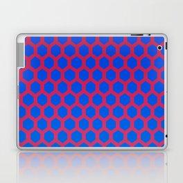 Shante You Stay Laptop & iPad Skin