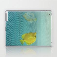 Under da glitch PT.2: A story of loss Laptop & iPad Skin