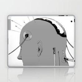 Cybernetic Coma Laptop & iPad Skin