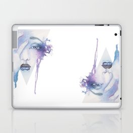 Homesick Laptop & iPad Skin