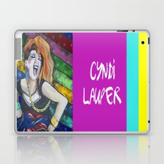True Colors- Cyndi Lauper  Laptop & iPad Skin