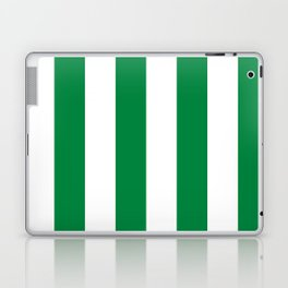 Classic Cabana Stripes in White + Kelly Green Laptop & iPad Skin