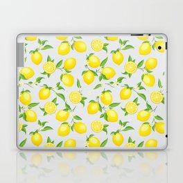 You're the Zest - Lemons on White Laptop & iPad Skin