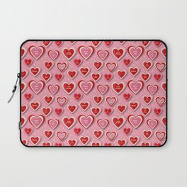 Anti-Valentines Bite Me - Pink Laptop Sleeve