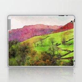 Green Grasmere Hillside, Ambleside, Lake District UK Laptop & iPad Skin