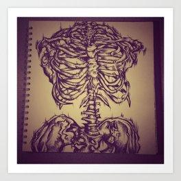 Calcium Deficiency  Art Print