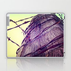 Blow the Wire Laptop & iPad Skin