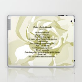 Palm of His Hands Laptop & iPad Skin