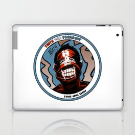 Teeth For President - Force that Smile - Autographed! (Facsimile) Laptop & iPad Skin