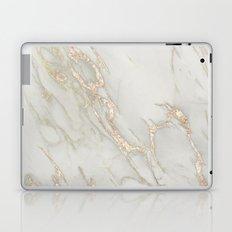 Marble Love Bronze Metallic Laptop & iPad Skin