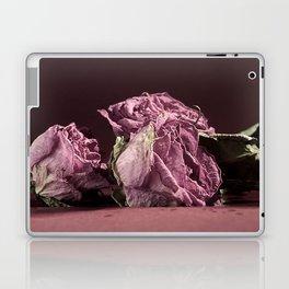 Age is Beauty Laptop & iPad Skin