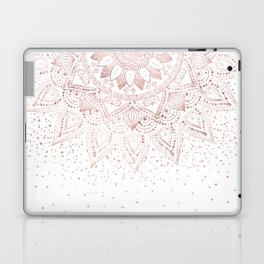Elegant rose gold mandala confetti design Laptop & iPad Skin
