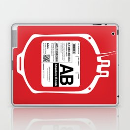 My Blood Type is AB, for Absolute Bomb! Laptop & iPad Skin