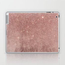 Girly Glam Pink Rose Gold Foil and Glitter Mesh Laptop & iPad Skin