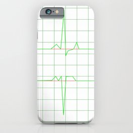 Normal Heart Rhythm iPhone Case