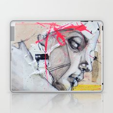 Have you Ever Hurt Someone You Loved? Laptop & iPad Skin
