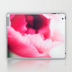 Love Contained Laptop & iPad Skin