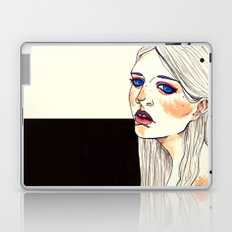 Freckles  Laptop & iPad Skin