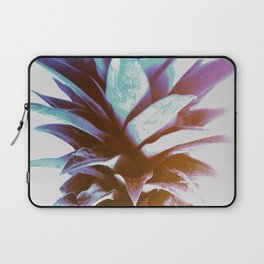 Tropical Top Laptop Sleeve