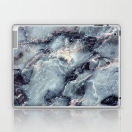 Blue Bayou Marble Laptop & iPad Skin