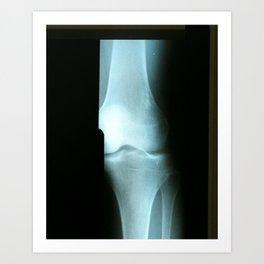 Knee Art Print