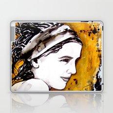 MP Laptop & iPad Skin
