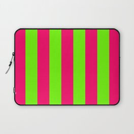 Bright Neon Green and Pink Vertical Cabana Tent Stripes Laptop Sleeve