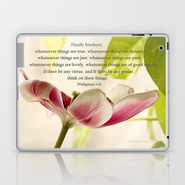 Whatsoever Things Are True Laptop & iPad Skin