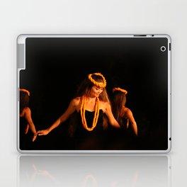 Hawaiian Luau Laptop & iPad Skin