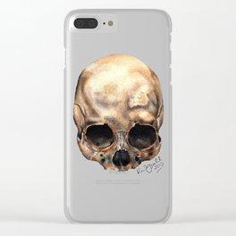 Alas, Poor Yorick! Clear iPhone Case