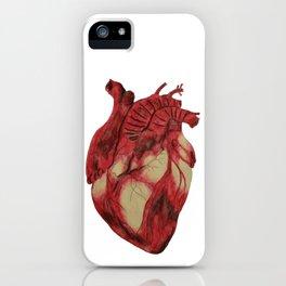 Macabre Heart iPhone Case