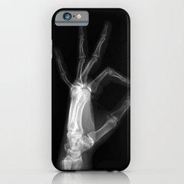 A OKAY iPhone Case
