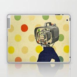 PLATE IX Laptop & iPad Skin