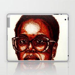 -3- Laptop & iPad Skin