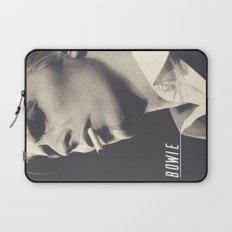 Bowie IX Laptop Sleeve