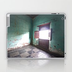 There will be a light Laptop & iPad Skin